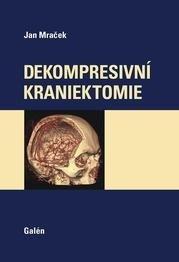 Dekompresní kraniektomie