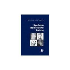 Syndrom bolestivého kolena