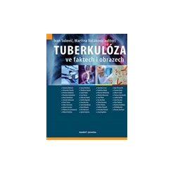 Tuberkulóza ve faktech i obrazech